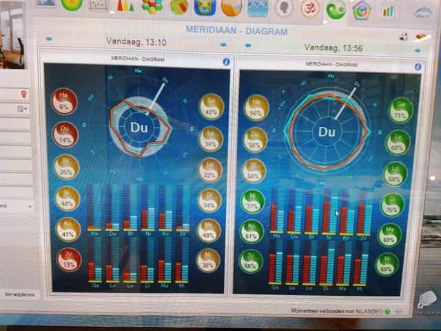 De VitaliteitsScan geeft weer wat de hoeveelheid energie is vóór en ná de behandeling met de LLLT.